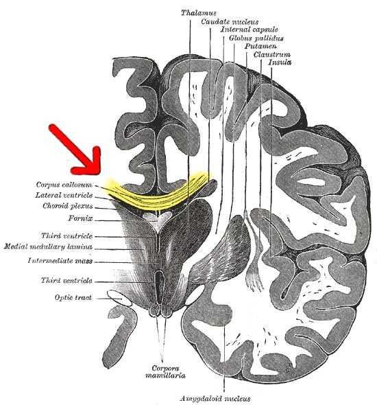 脳梁の画像